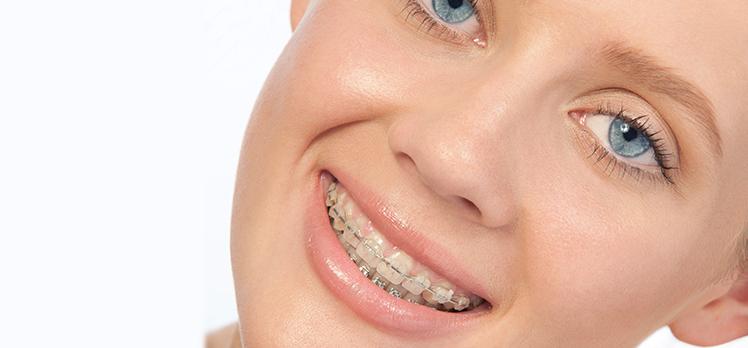 ceramic-braces-img21